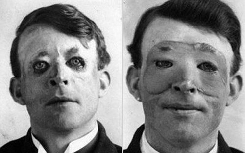 1917_Walter_Yeo_one_of_the_first_to_undergo_an_advanced_plastic_surgery_and_a_skin_transplant